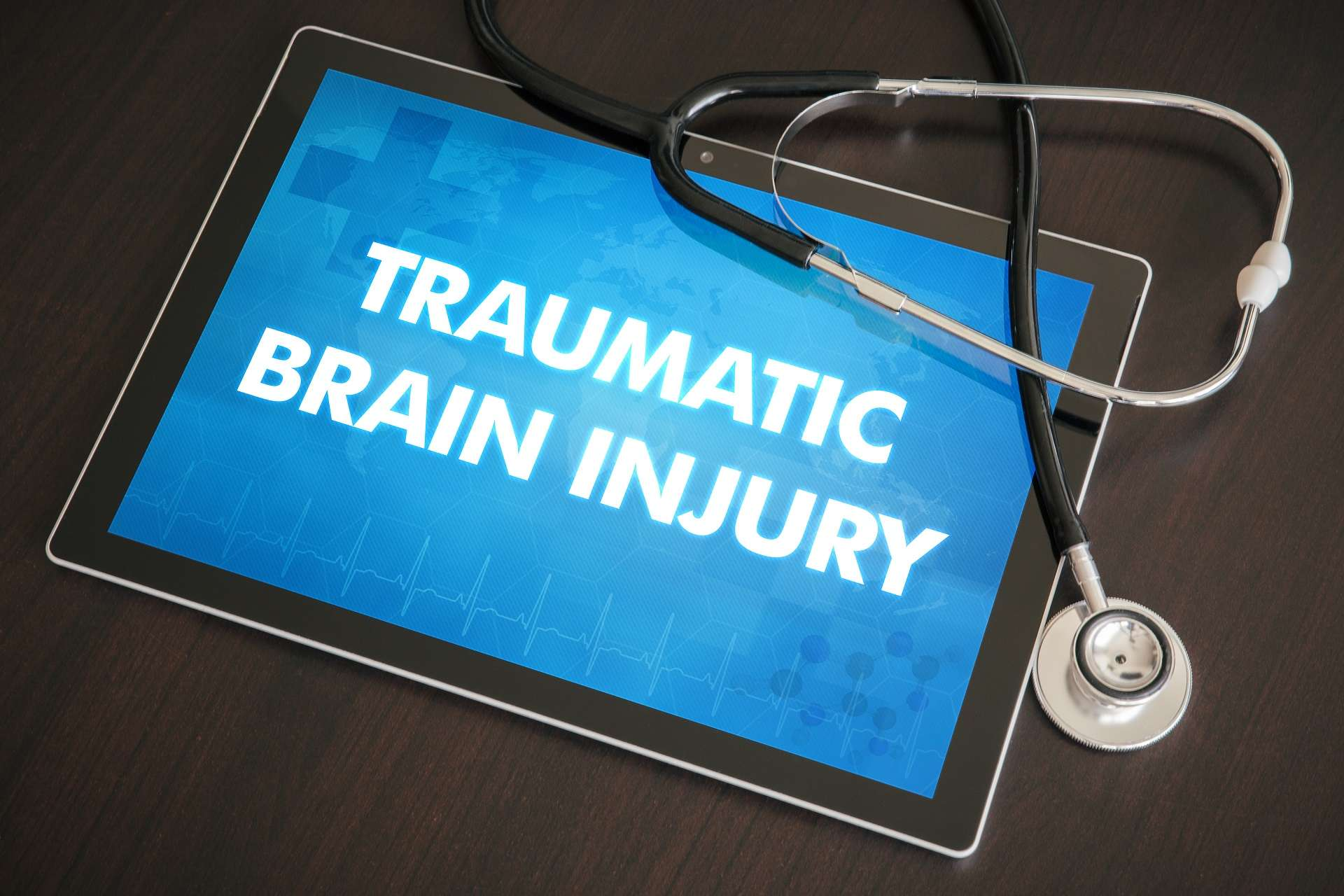 vocational experts in traumatic brain injury